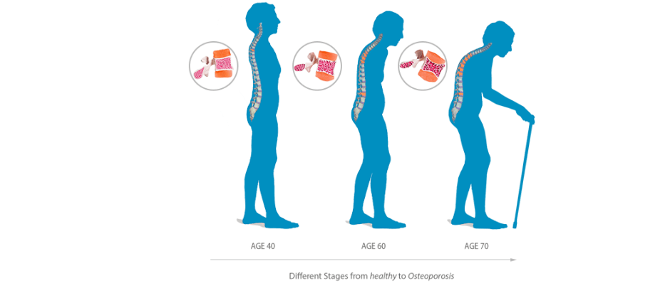Osteoporosis – when did you last have your bone mineral density scan?