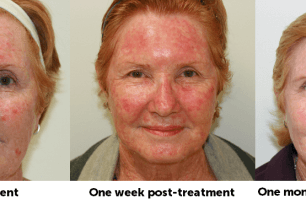 Daylight Photodynamic Therapy – a new way to treat sun damage