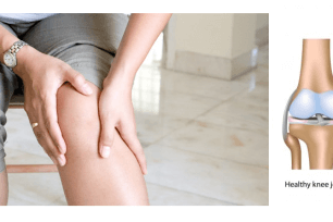Osteoarthritis – Do your screws need tightening?